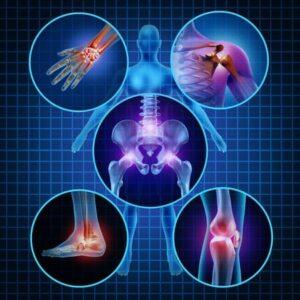 joint pain image- iron overload