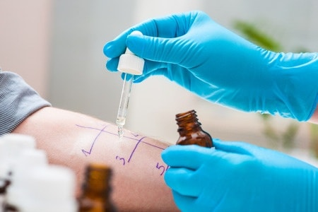 histamine intolerance image is of allergy testing which is also a histamine reaction