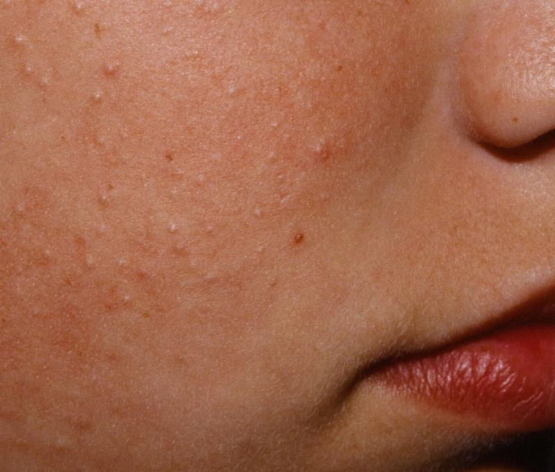gluten rash chicken skin rash- keratosis pilaris rash can occur on cheeks like in this picture