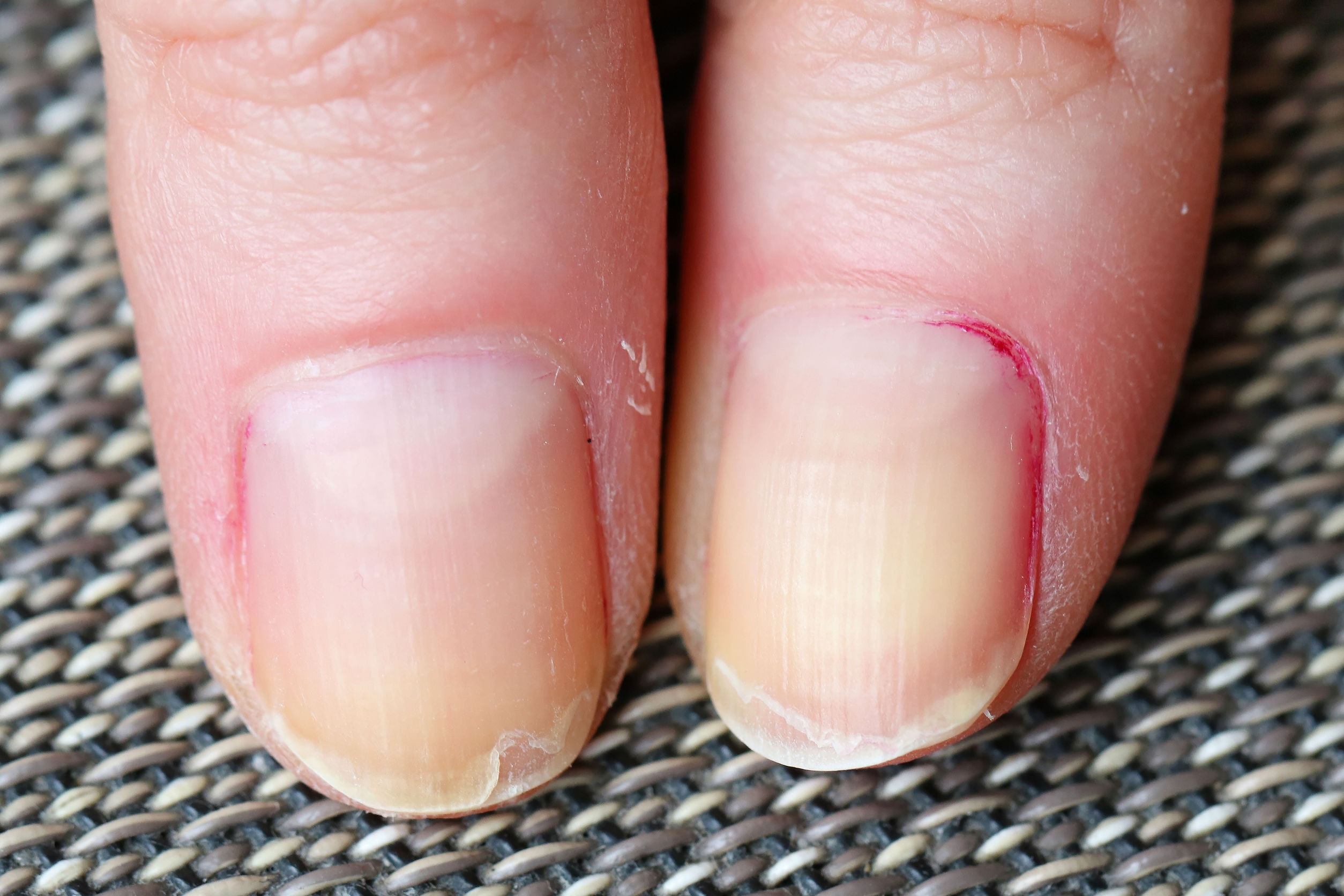 Split/peeling fingernails. These can occur with hypothyroidism, low protein and other conditions associated with gluten intolerance and celiac